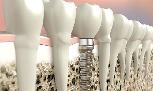Implanty stomatologiczne - model